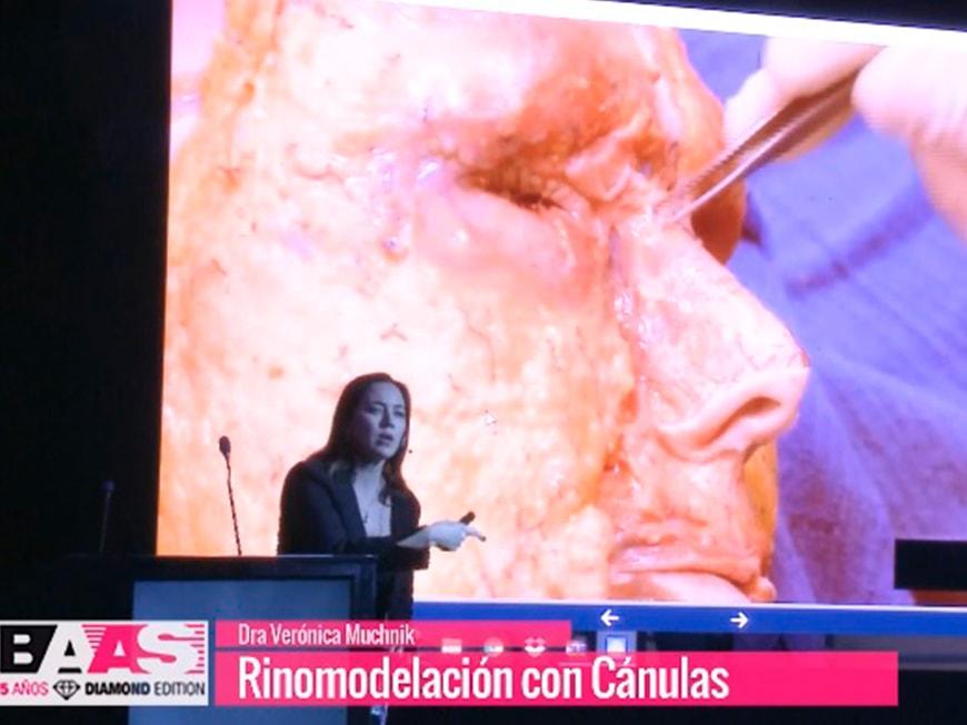 Rinomodelacion-con-canulas-min