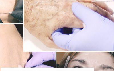Radiesse: relleno de manos, bioestimulación y contorno facial