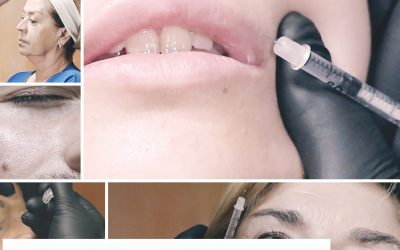 Comprehensive course of injectables: fillers, radiesse and toxin.