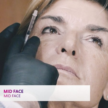 Mid Face: part of the comprehensive injectables course