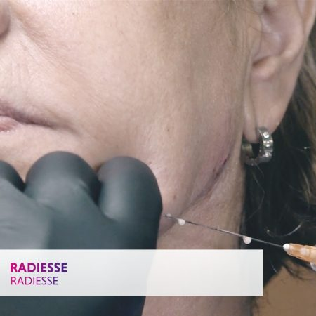 Radiesse: part of the comprehensive injectables course