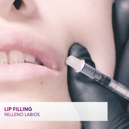 Lip filler: part of the comprehensive injectables course
