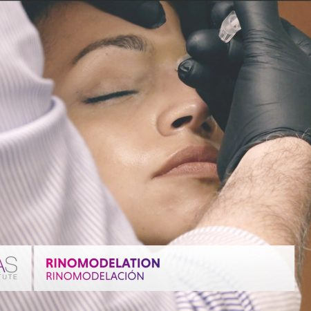 Rhinomodeling: part of the comprehensive course of injectables