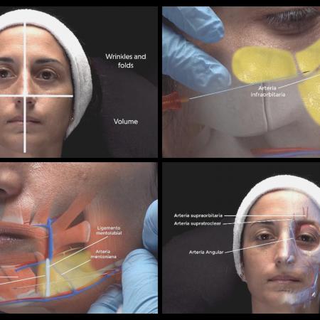 Full Face y Armonización Facial XR